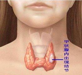 有了甲状腺结节,在老药工看来可能是脾虚了