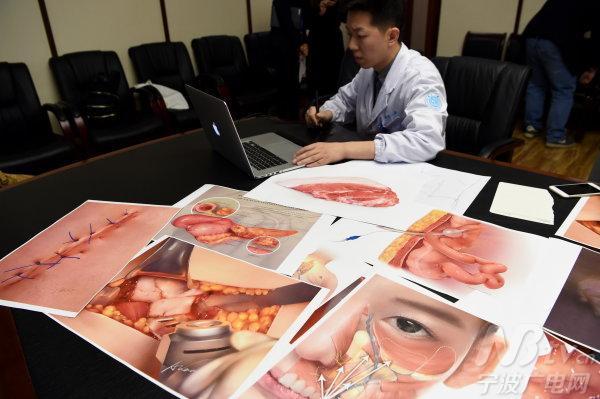 这位医生特擅长医学插画